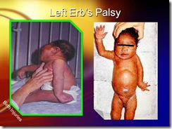 erb's palsy medicalshow