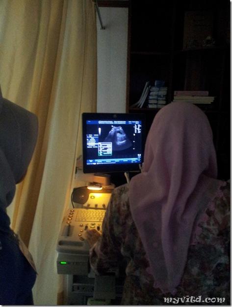 Checkup Baby Minggu 38 c
