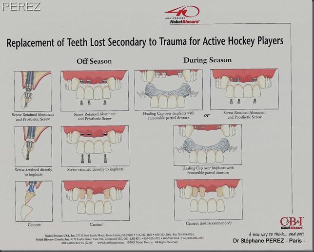 blog du cabinet dentaire implants dentaires et hockey sur glace. Black Bedroom Furniture Sets. Home Design Ideas