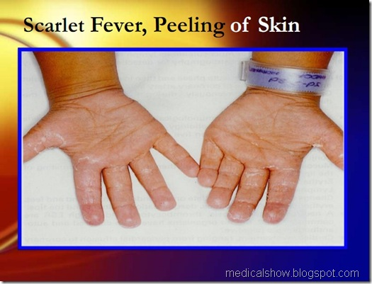 scarlet fever, peeling of skin