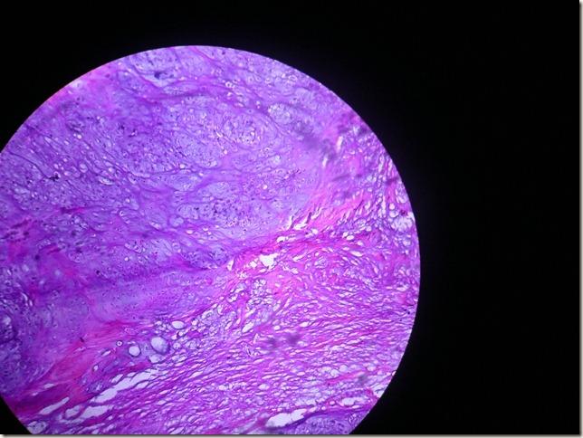 chondroma slide