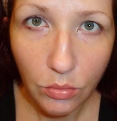 skin before Rodan   Fields Acute Care Regimen_5