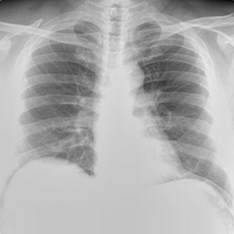Pemeriksaan radiologi thorax pada kasus bronchitis