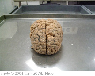 'brain' photo (c) 2004, karmaOWL - license: http://creativecommons.org/licenses/by-nd/2.0/