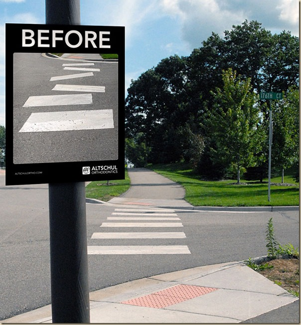 street-ads-straight-teeth