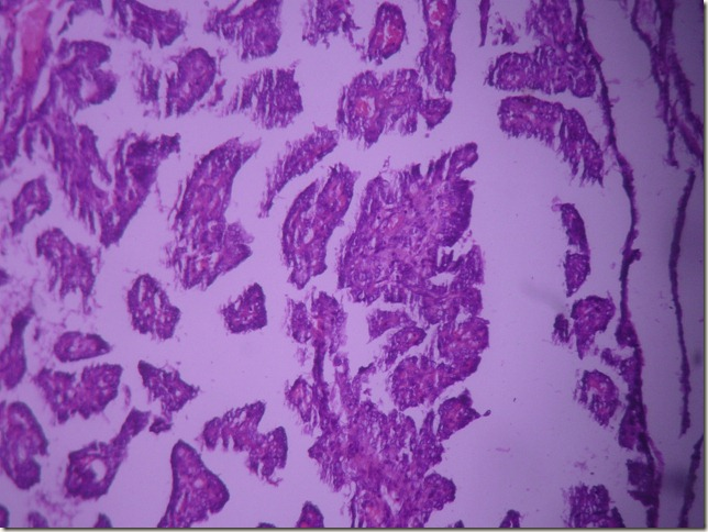 papillary carcinoma of thyroid gland histopathology