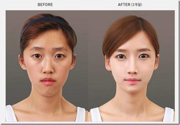 korean-plastic-surgery-1