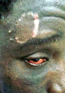 Inmigrante herido pelotas-goma Ceuta