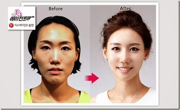 korean-plastic-surgery-33