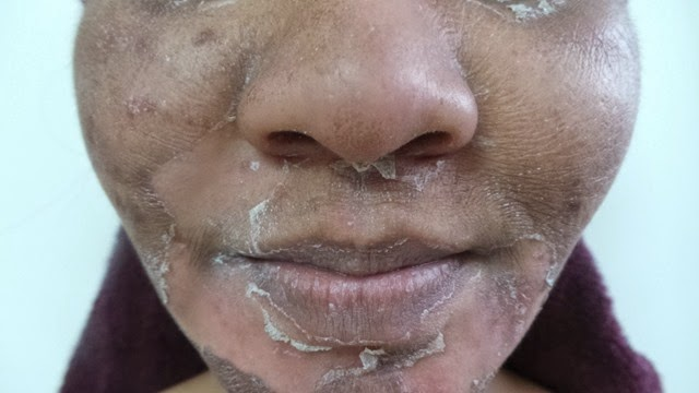 skin peeling 2