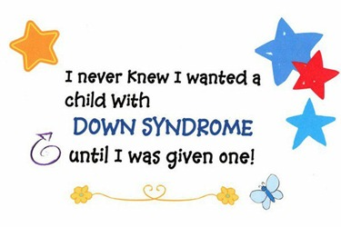 DownSyndrome.1