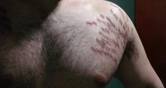 Foto do ombro, peito e brao esquerdo aps a primeira sesso de laser de CO2 fracionado, mostrando a fase de cicatrizao das estrias brancas.