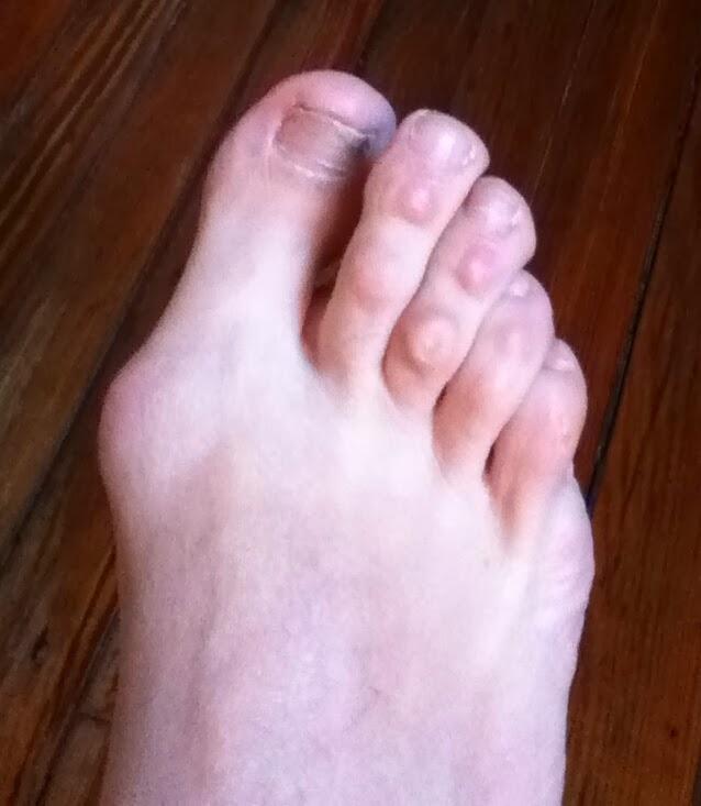 Mi operaci n de hallux valgus juanetes for Operacion de pies