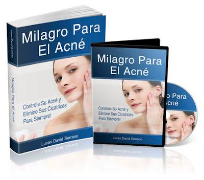 MILAGRO PARA EL ACNÉ [ Libro Guía ] – Cómo controlar el acné y eliminar las cicatrices de la piel para siempre