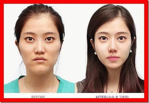 korean-plastic-surgery-31