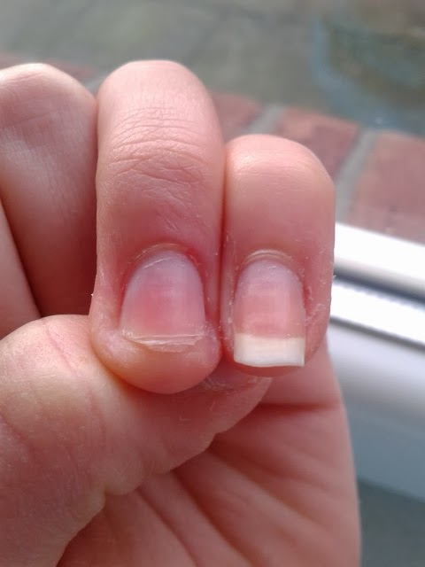 nagelpilz behandlung mit nagellack gegen nagelpilz vorgehen. Black Bedroom Furniture Sets. Home Design Ideas