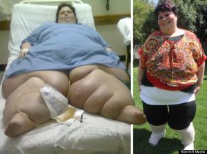 Bed Bound 50 Stone Elephantiasis Woman Walks Again After Having Legs