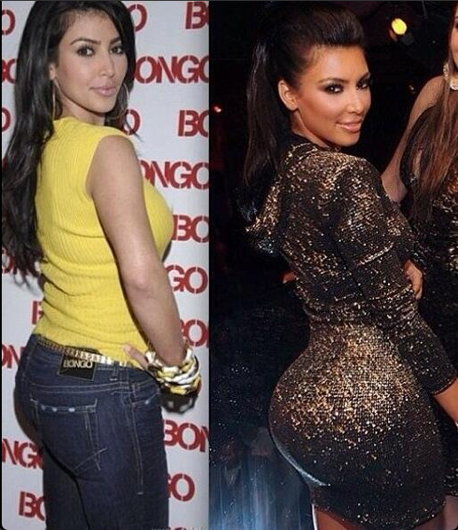 Kim Kardashian Before Implants