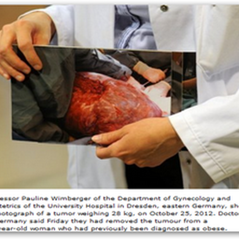 Doctors in Germany Remove 62 Pound Tumor From Woman Who Had Been Diagnosed as Obese