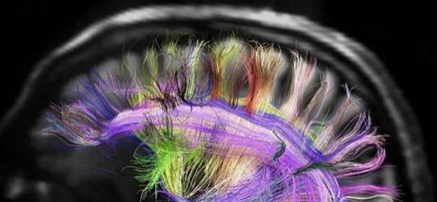 cableado neuronas