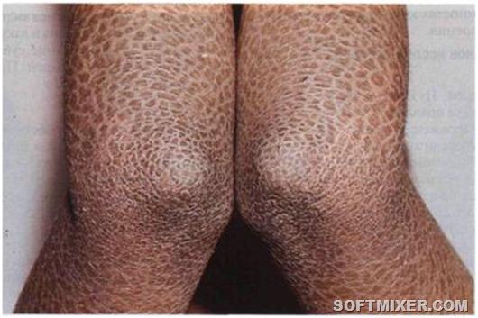 ichthyosis lamellaris 2