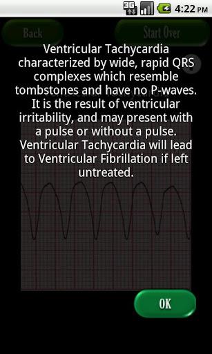 【免費醫療App】Easy ECG-APP點子