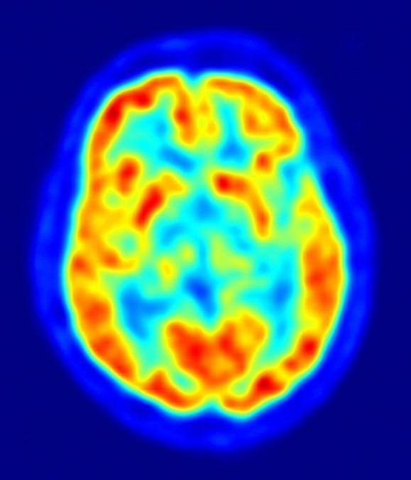 cerebro habla