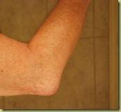 Student elbow 1