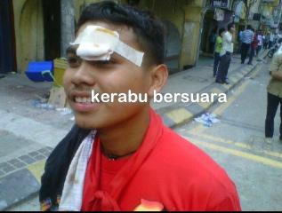 Live Bersih 3.0! Salut Untuk anak muda ini