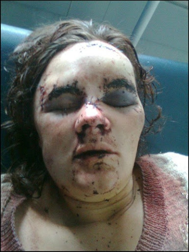 ... hammer-attack on the pregnant, sleeping Theresa van Zyl and her husband ...
