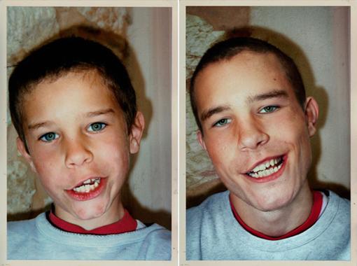NICO in 1990 & 2010, France