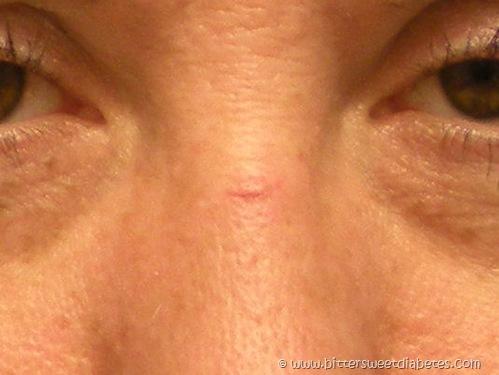 Cut Nose