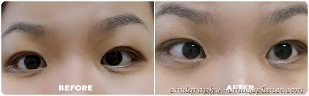 Evolu eye lip serum result1