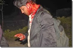 GSVM-Medical-College-Police Assault-Samajwadi-Party-MLA-Irfan-Solanki