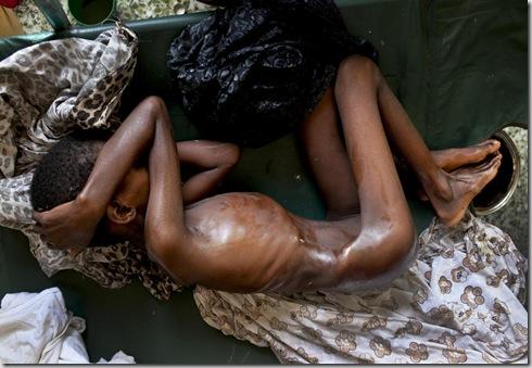 SOMALIA FAMINE 1