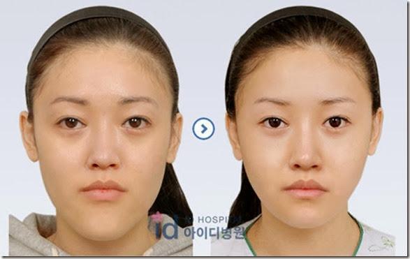 korean-plastic-surgery-19