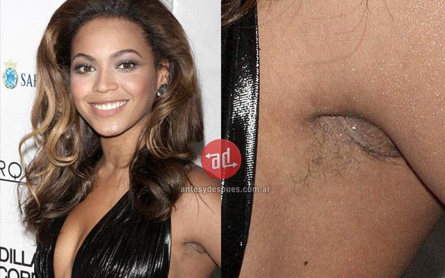 Foto de  Beyonce sin depilarse