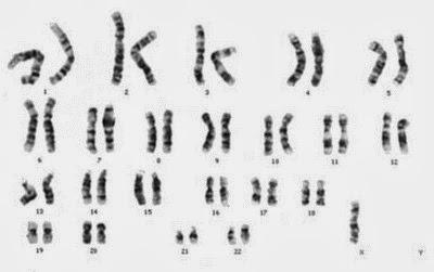 kromosom sindrom turner