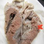 heart_ventricle_pin_labeled.JPG