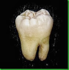 Lower_wisdom_tooth