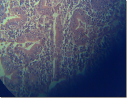 Purkinje cels high magnification under microscope