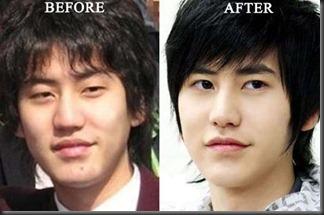 Kyuhyun-Plastic-Surgery