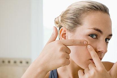 como quitar el acne5