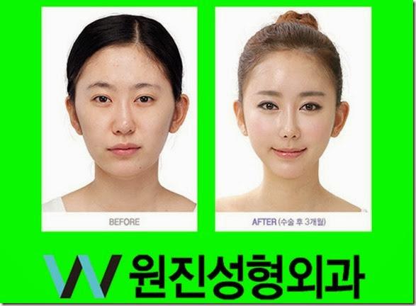 korean-plastic-surgery-30