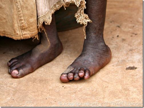 feet12
