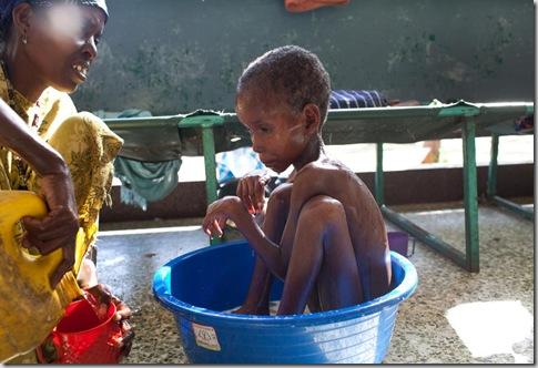 SOMALIA FAMINE 10