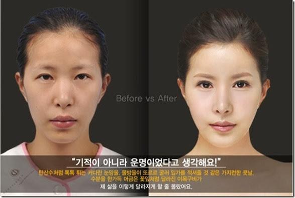korean-plastic-surgery-32