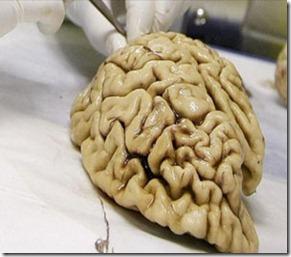 gen cerebro