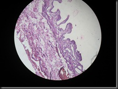 chronic cholecystitis high resolution histology slide tsnaps