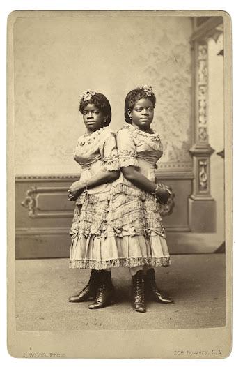 Millie and Christine McKoy, ca. 1870